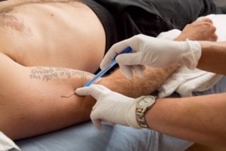 dry needling course